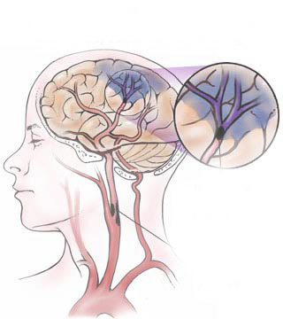 چگونه می توانیم به روند بهبود بیمار پس از سکته مغزی کمک کنیم ؟ - فیزیوتراپیست وحید صادقی