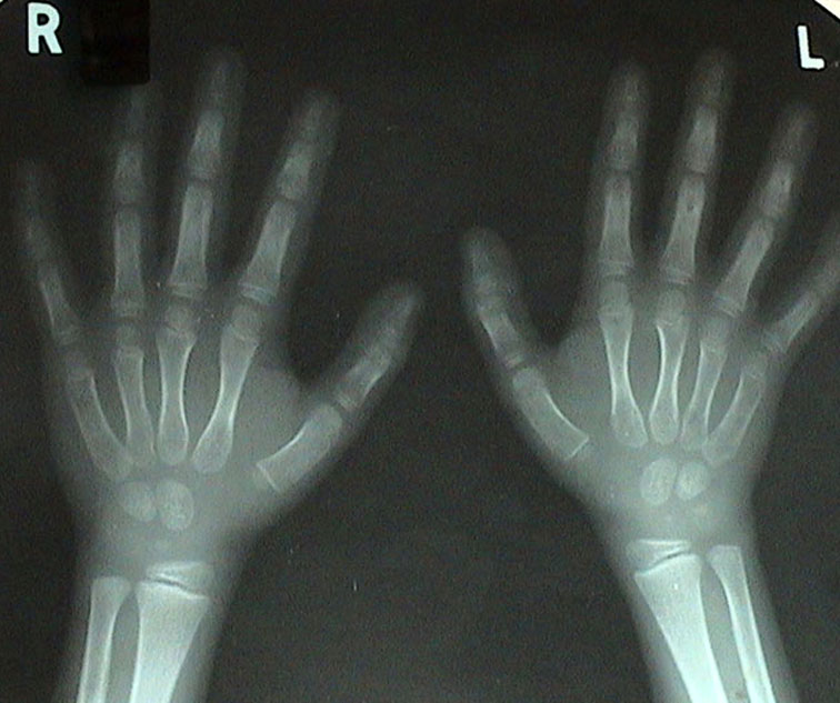 X-Ray Before Treatment 20020527